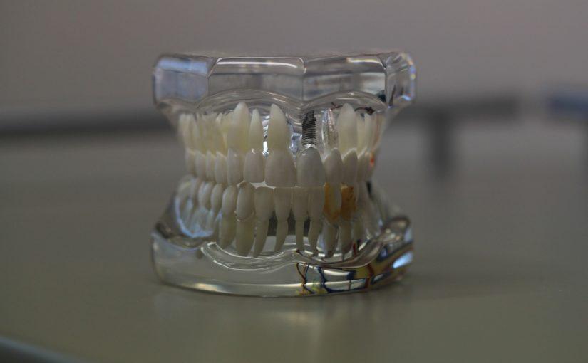 Zły sposób żywienia się to większe deficyty w zębach oraz także ich brak